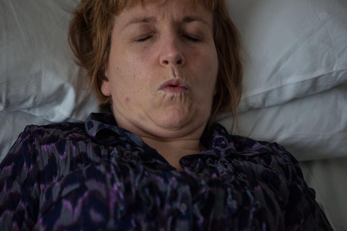 Sintomi sclerosi multipla dolore